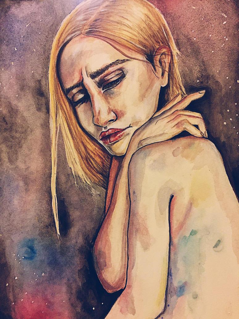 Dreamy Bruises by emma4989