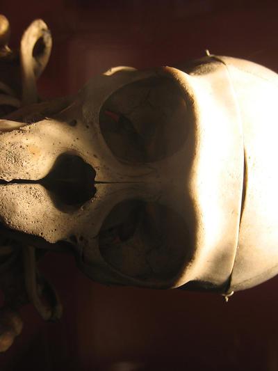 Skull Stock by melemel