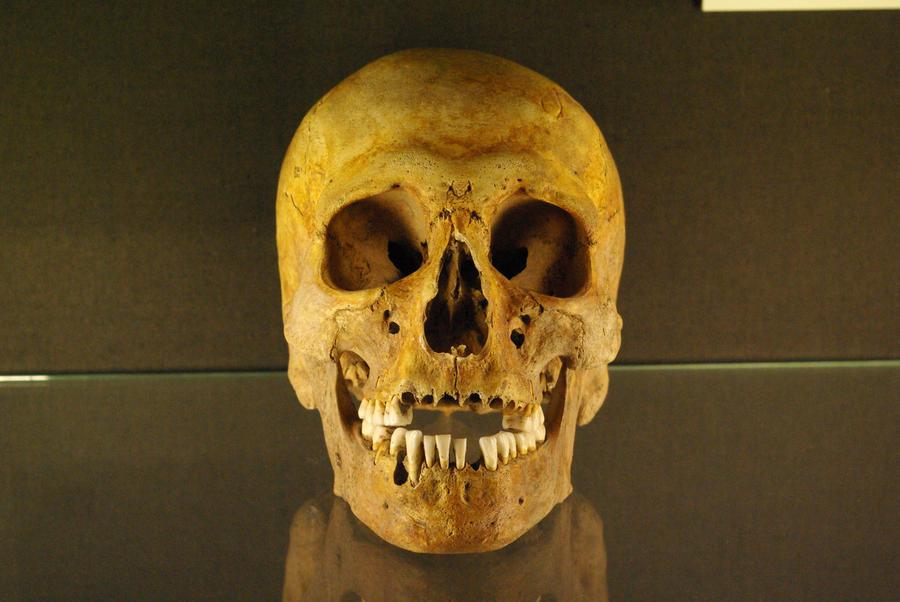 Skull Stock by rustymermaid-stock