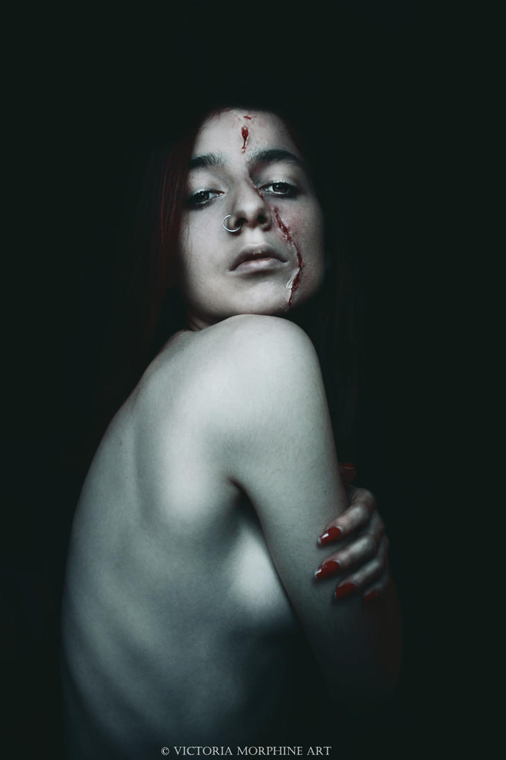 scars. by VictoriaMorphine