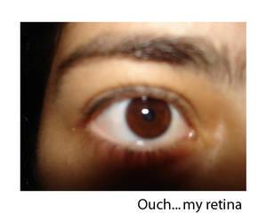 My retina