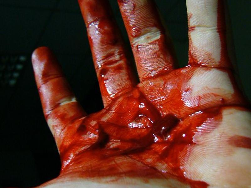 bloody hand   2006 by bird26 on deviantart