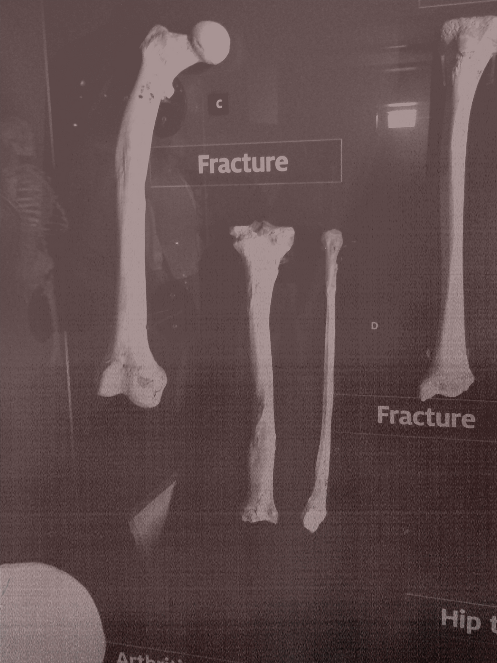 Fracture  by sootyjared