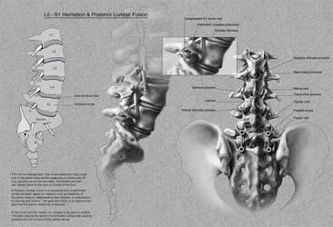 Herniation-Lumbar fusion by MedIllin