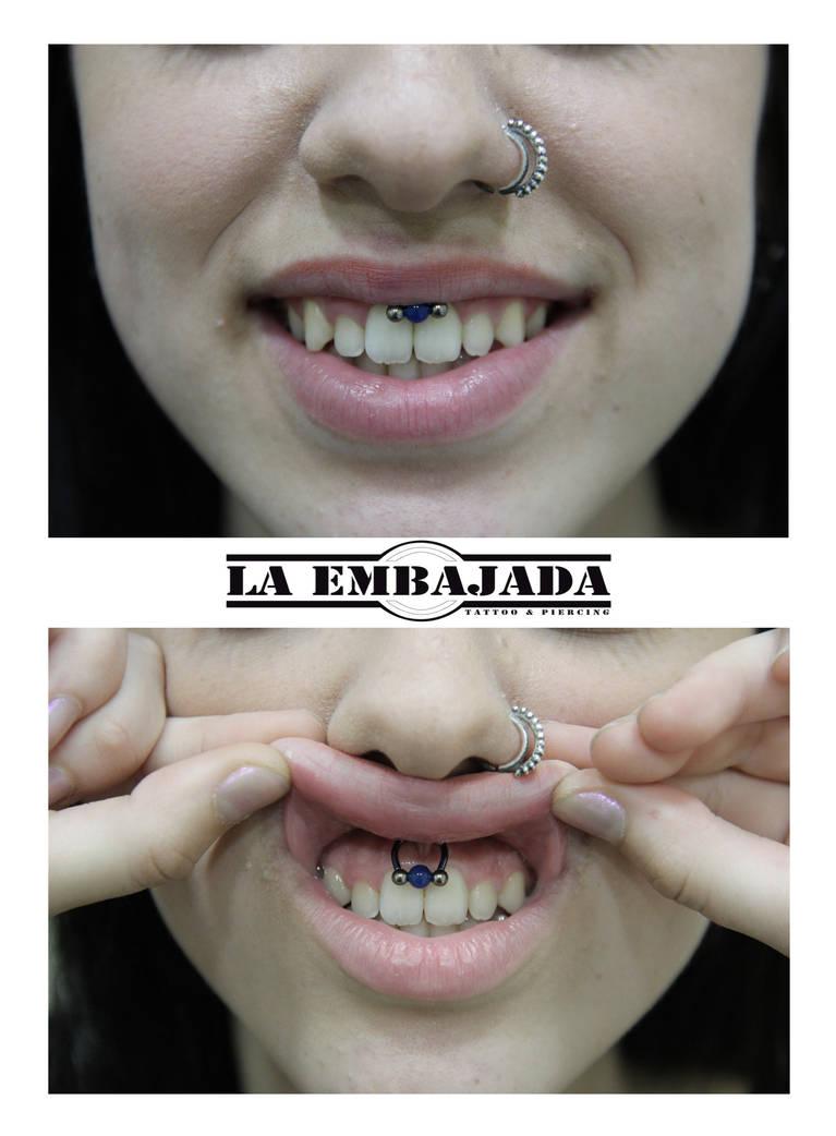 Fresh Smiley Piercing By Laembajadatattoo On Deviantart