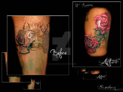 Keloid Rose Coverup By Maliboosmiley On Deviantart