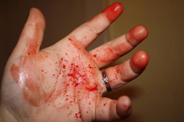 Bloody Hand Stock