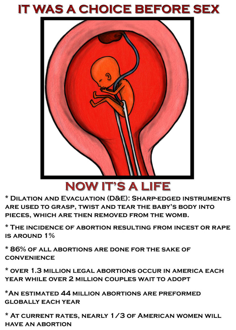 abortion propaganda poster by sabor7 on abortion propaganda poster by sabor7