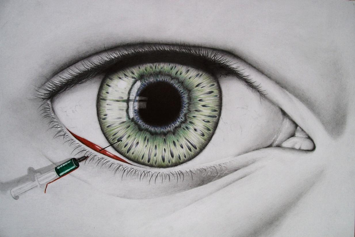 Insomnia by Skiofit