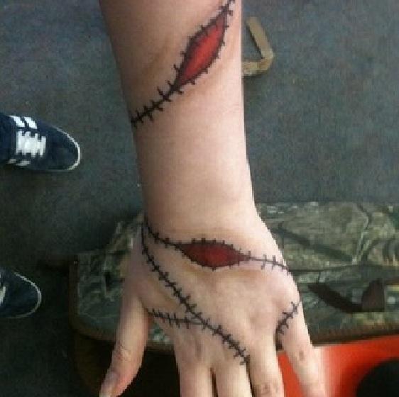 Stitches by Risingsmoke