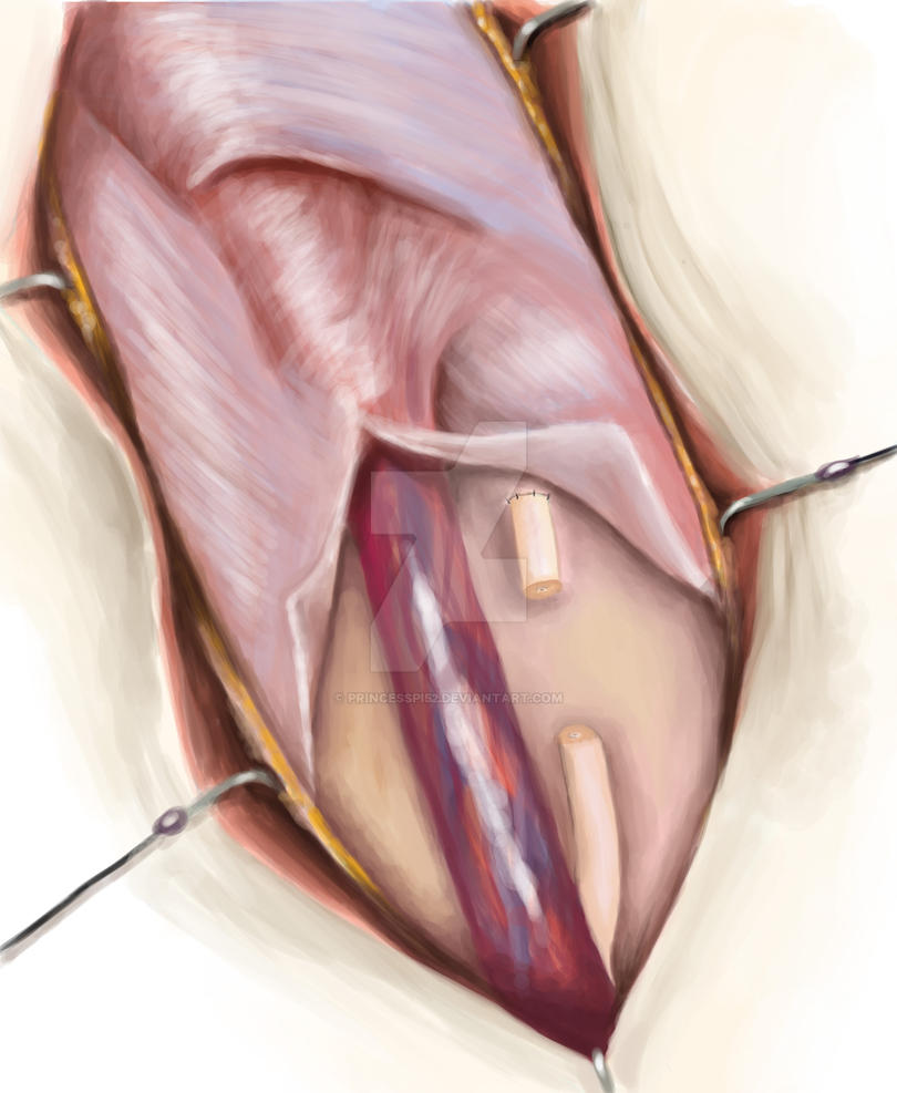 Correction Of Injury To The Vas Deferens By Princesspi52 On Deviantart