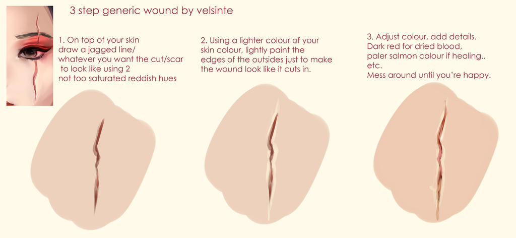 Tutorial - Easy generic wound by Velsinte