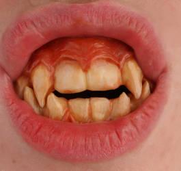 Wearable 'Werecat' Teeth