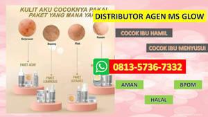 WA 0813-5736-7332,Ms Glow Moisturizer