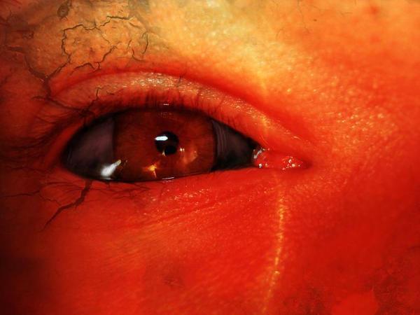 Radium Eye by Blacksoulofdeath
