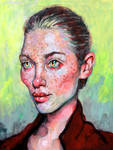 Acne Girl