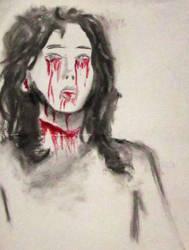 Hurt by FragileReveries