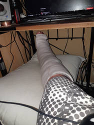 My broken foot after surgery