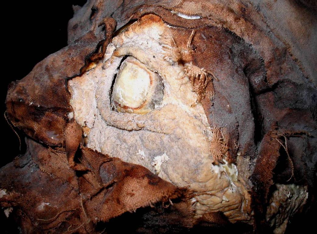 Vampire Mummy Head 3 by DETHCHEEZ