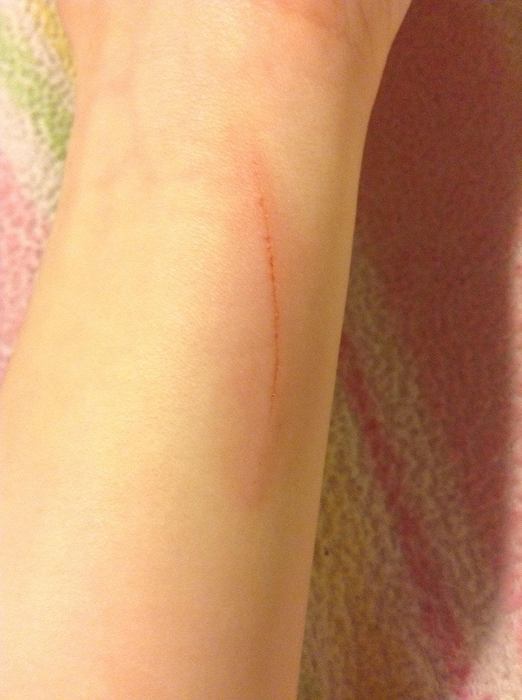 how to make cuts heal faster on your wrist