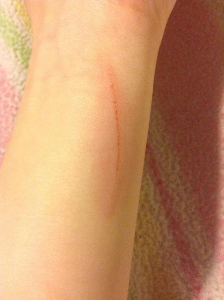 Cut my wrist... by WarriorGingerclaw on DeviantArt