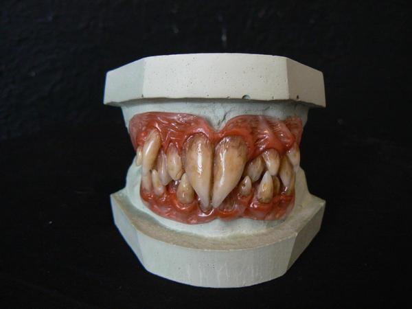 Rat Goblin Teeth by missile-me