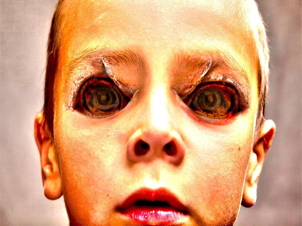 Human Chimera Symptoms