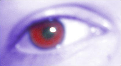 Eye for an Eye by XanderX