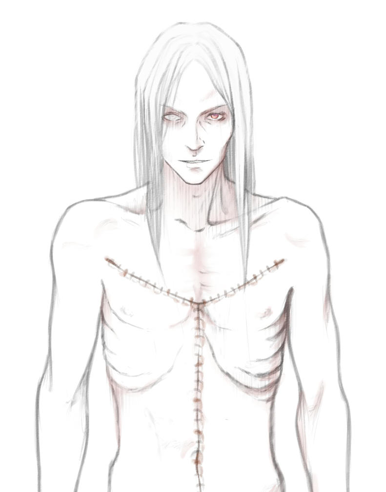 Sketch of the planned BJD by Insulinum