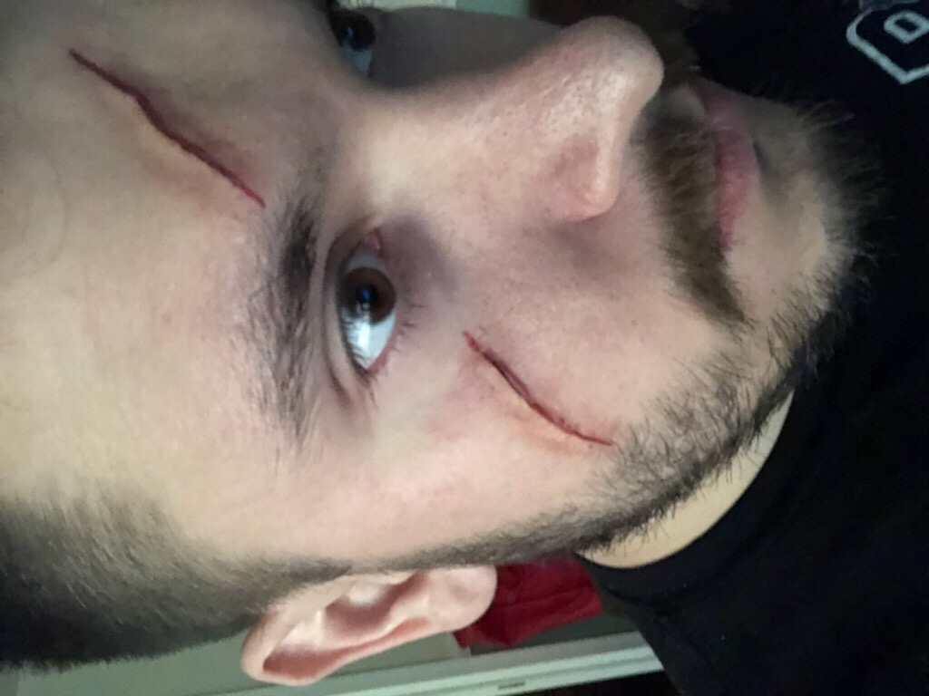 Kylo Ren SFX cut/scar by j0wey