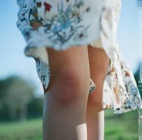 knees by LazloHollyfeld
