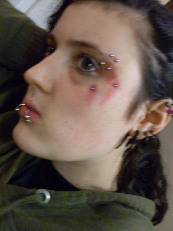 Infected piercing by tara duck on deviantart for Badly infected tattoo