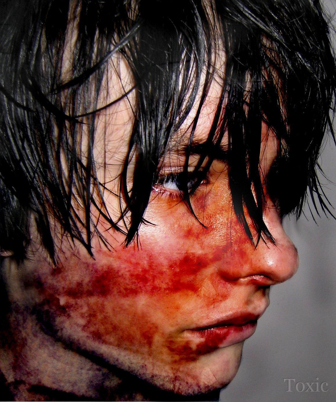 Male beat up by ukt0xic