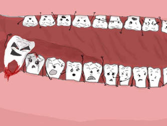 My Wisdom Tooth is Growing In by kupo6x