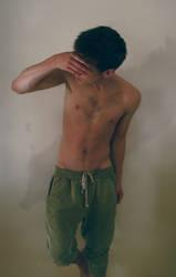 Scars by petebritney