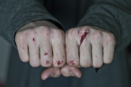 Bloody Knuckles by Simplex-Spem