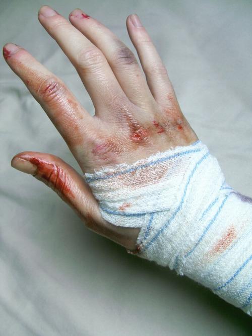 Wrapped Wrist by Simplex-Spem