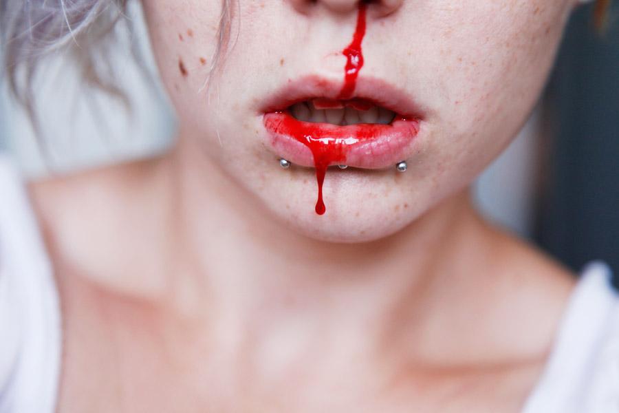 Nose bleed by Simplex-Spem