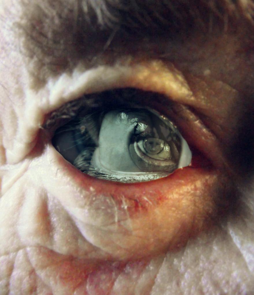 Alzheimer's by TalesOfNightWing