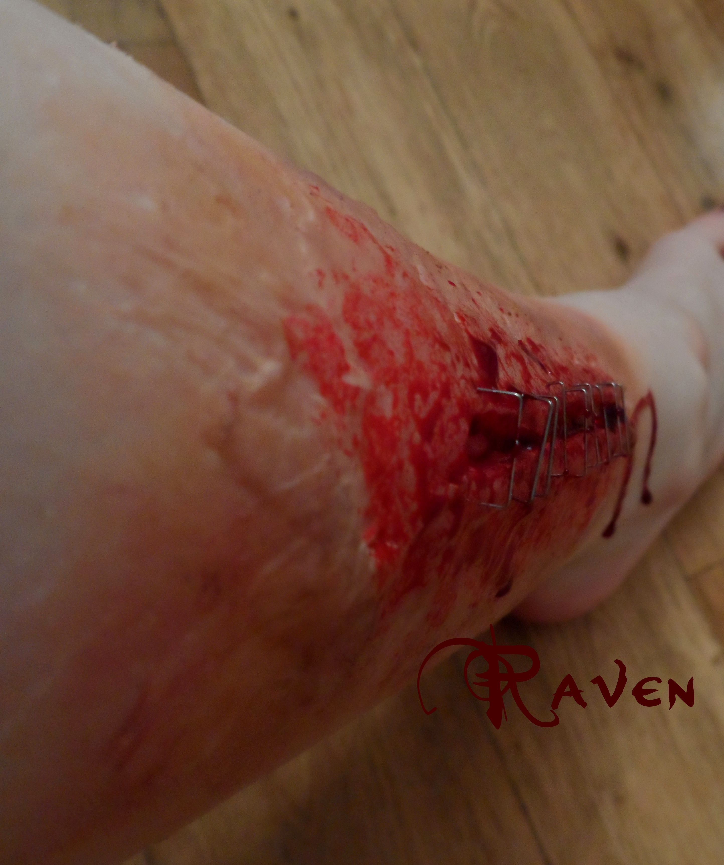 leg wound 1 by GothicRavenMidnight
