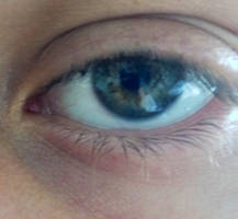eye2 by ChemDiesel