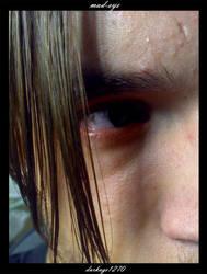 mad-eye