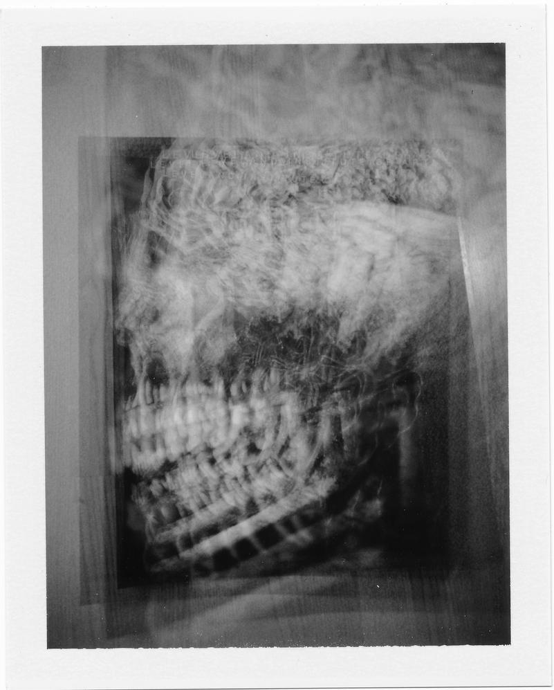 X-Ray by SteveSyd