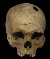 Human Skull - Gun Shot Wound by eviln8