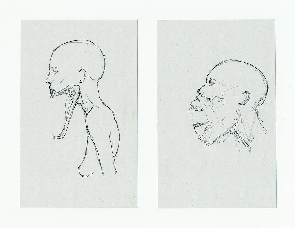 Famine by hypnothalamus