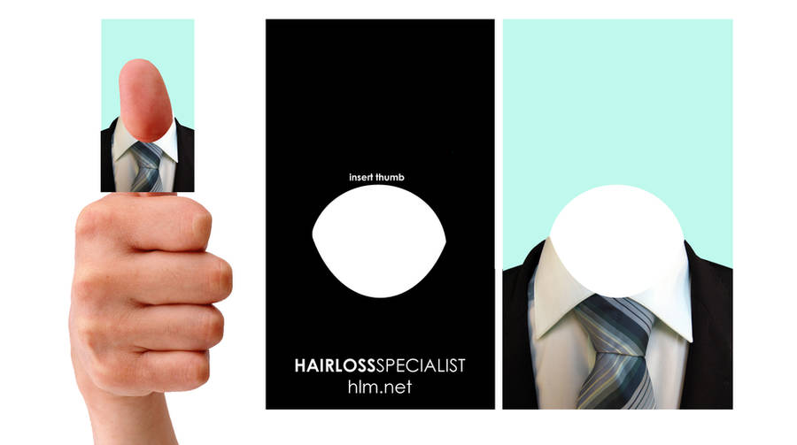 Hairloss company Business card by SJROBZY