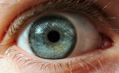 eye 76