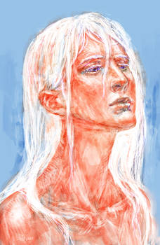 Daenerys the Sunburnt