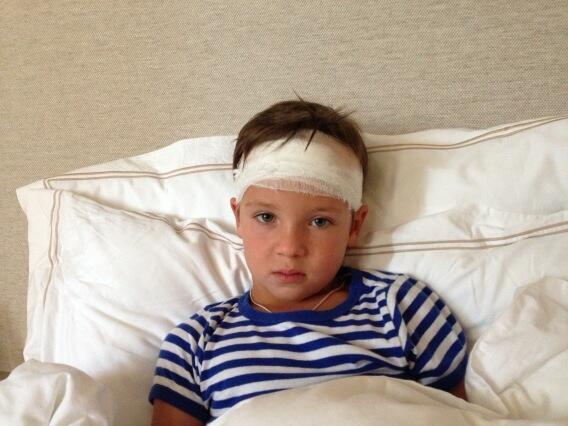 фото ребенок разбил голову