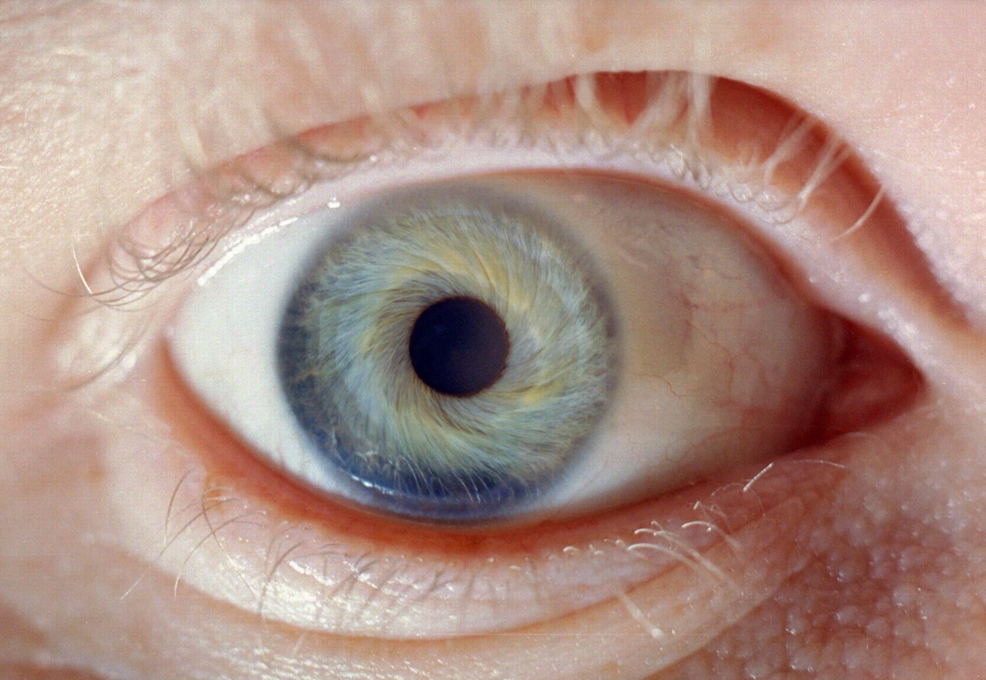 my eye by eikonstock
